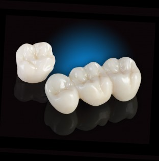 zirconia-crowns-1