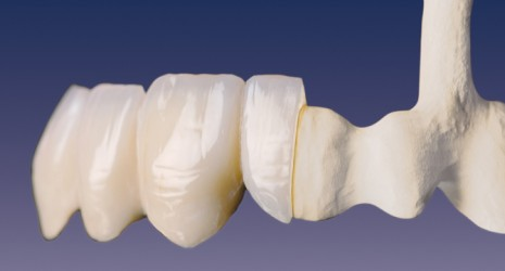 banner-images-dental-ceramics